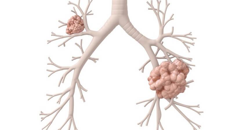 3D Grafik Lungen mit Lungenkrebs