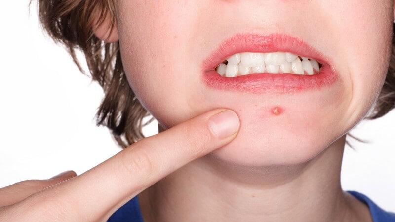 Junges Gesicht mit Pickel auf dem Kinn, Finger zeigt darauf