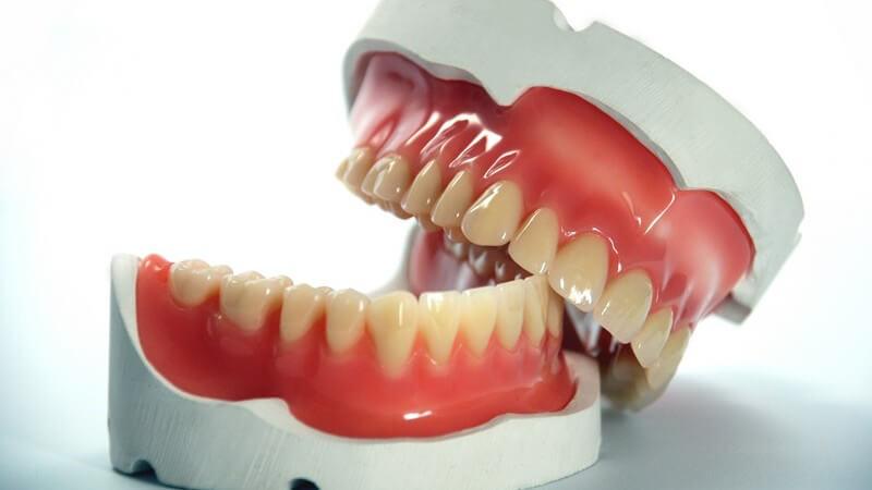 Zähne - Zahnmodell mit schräg auf dem Unterkiefer liegendem Oberkiefer