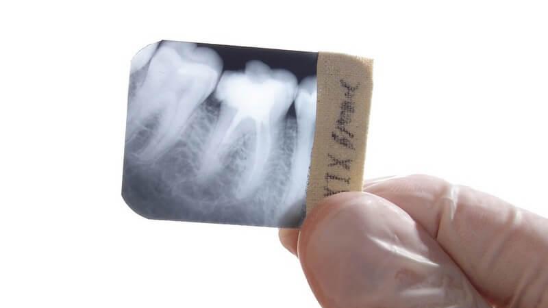 Rechte Hand in Schutzhandschuh hält kleines Röntgenbild von Zähnen und Kiefer, Zahnarzt, weißer Hintergrund