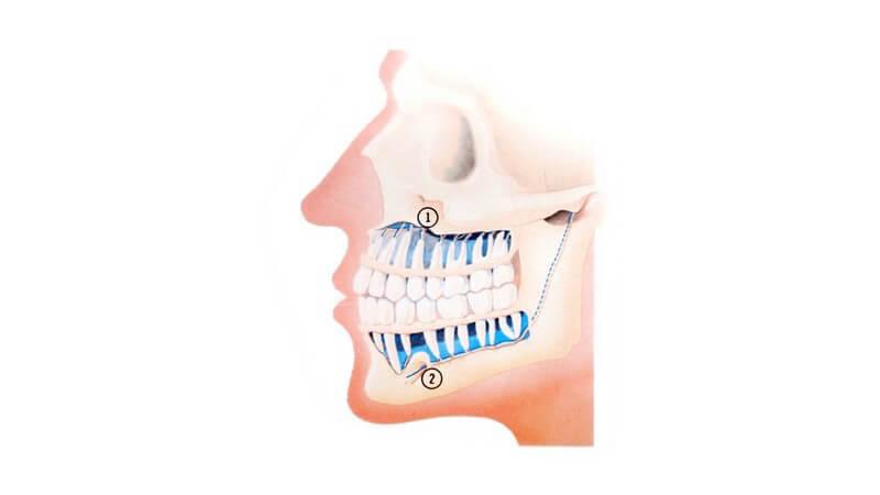 Grafik Seitenansicht menschlicher Kopf mit Zähnen, Kiefer