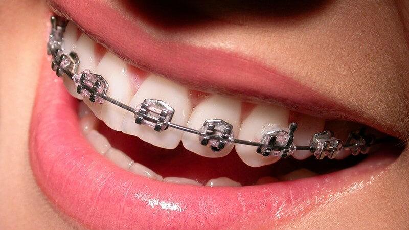 Lachender Frauenmund mit Zahnspange
