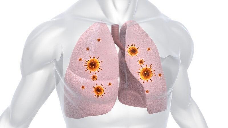 Grafische Darstellung Lungeninfektion