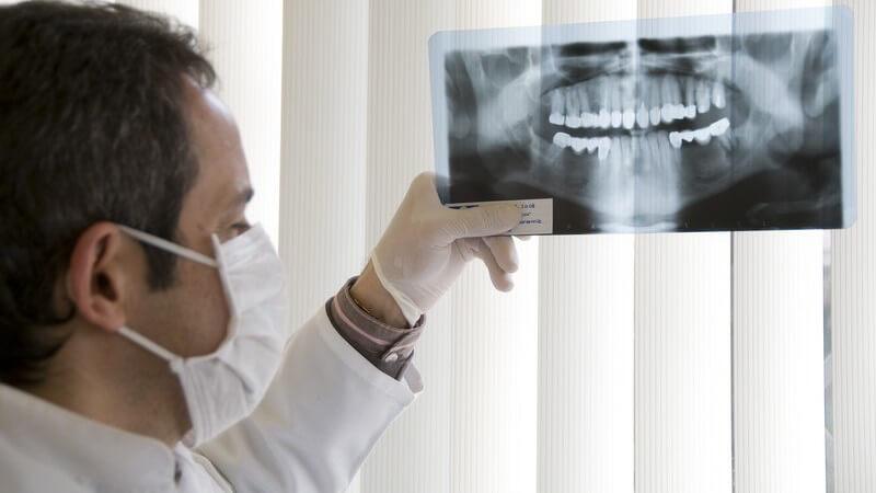 Zahnarzt mit Mundschutz hält ein Röntgenbild des menschlichen Kiefers hoch