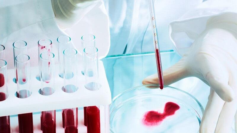Blutproben in Reagenzgläsern in Labor