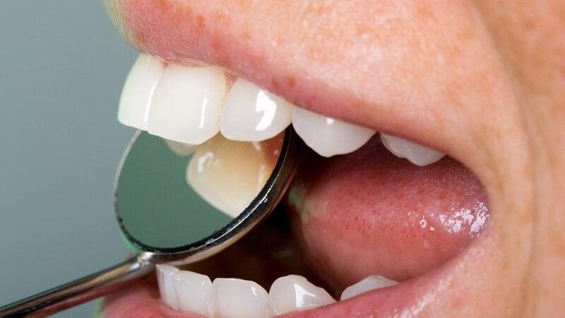Nahaufnahme Zahnkontrolle mit Spiegel