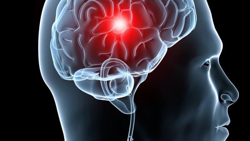 Grafische Darstellung Kopfschmerz