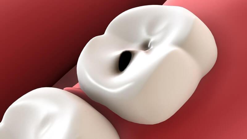 Grafik weißer Zahn mit Loch, Karies