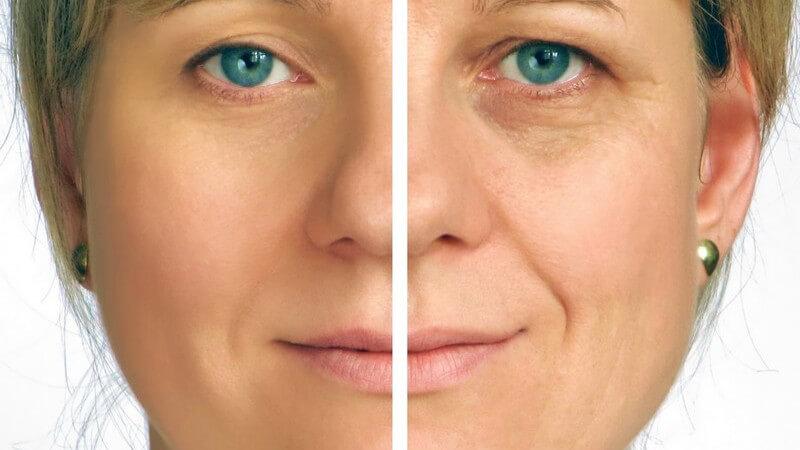 Zwei Gesichtshälften einer Frau - vor und nach der Faltenbehandlung