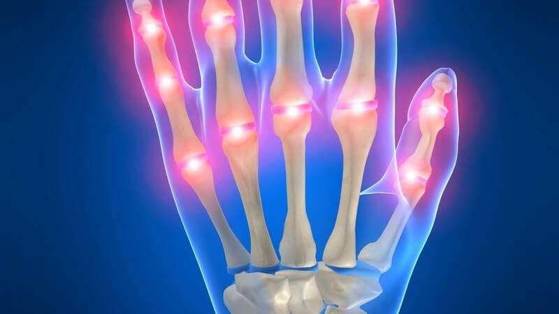 3D Grafik Skelett linker Hand mit Schmerzpunkten