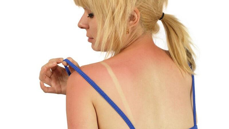 Rückansicht junge Frau in BH hat Sonnenbrand auf Schultern und im Nacken