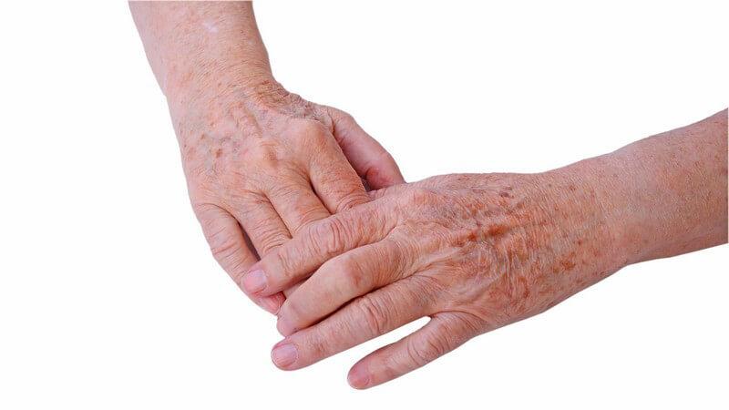 Zwei Hände eines Senioren, Altersflecken