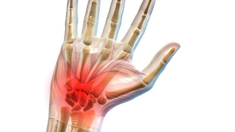 Grafik menschliche Hand, Handschmerzen