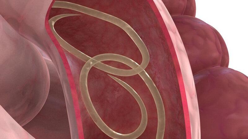 3D Grafik Spulwurm im Darm