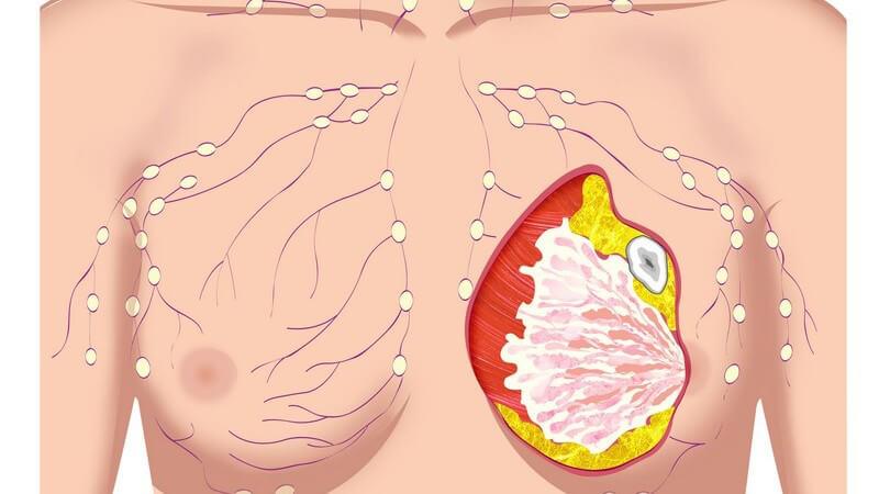 Grafische Darstellung Frauenoberkörper mit Tumor in Brust