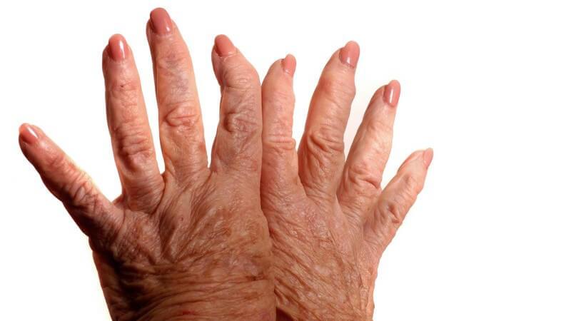 Arthritische Hände auf weißem Hintergrund