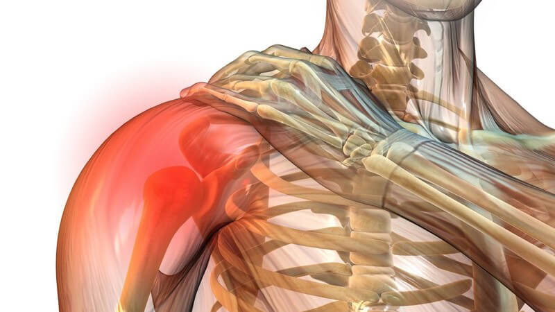 Grafik Körper mit Schulterschmerzen