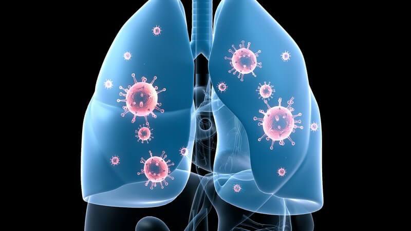 Grafik Lungeninfektion auf schwarzem Hintergrund