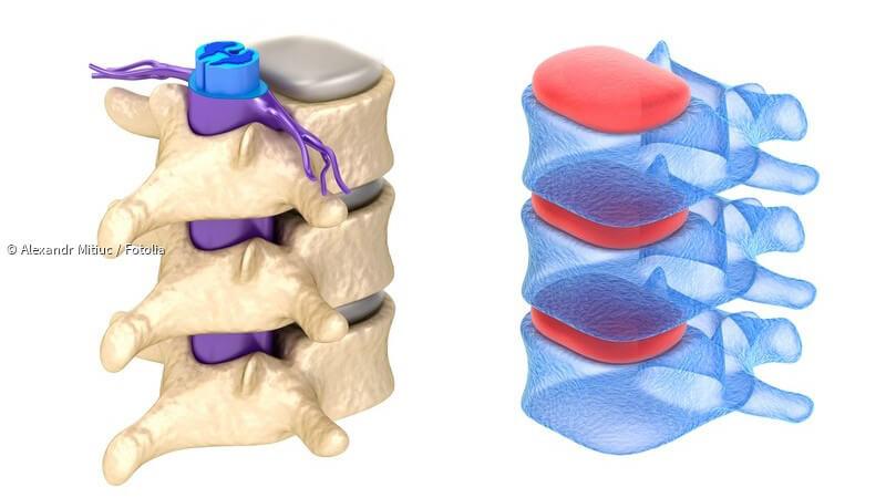 Querschnittslähmung heilen: neuer Schrittmacher bringt den