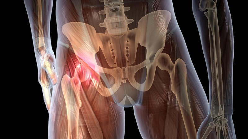 Grafik Körper mit Hüftschmerzen