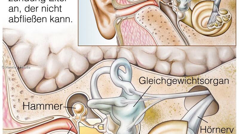 Welches Antibiotika Bei Mittelohrentzündung