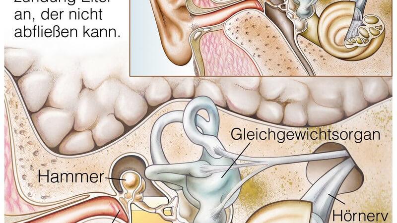 Mittelohrentzündung In Der Schwangerschaft