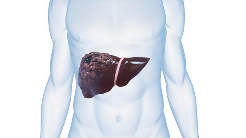 Grafik männlicher Körper mit Leberkrebs