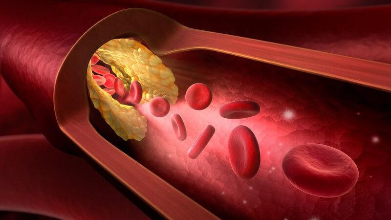 3-D-Grafik eines Blutgefäßes mit roten Blutkörperchen und Ablagerungen (Arteriosklerose)