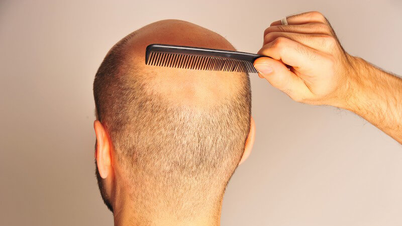 Glatzenbildung