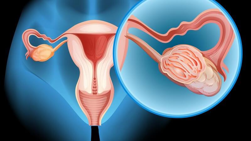 Grafik des weiblichen Geschlechtsorgans mit Vergrößerungsausschnitt des Eierstocks
