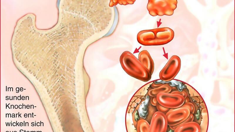 Grafische Darstellung einer Stammzelltherapie im gesunden Knochenmark, mit Beschriftung