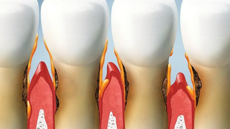 Grafik vierer Zähne und Zahnfleisch mit Verlauf einer Parodontitis