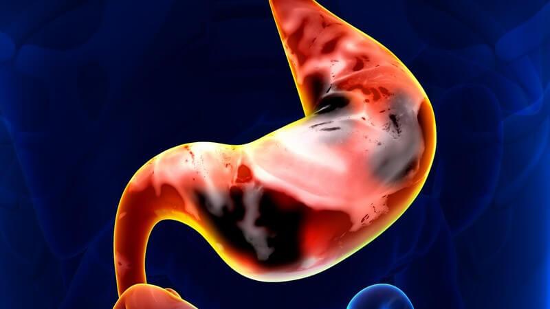 Grafik eines Magens mit Magenkrebs, gelb-rot leuchtend hervorgehoben