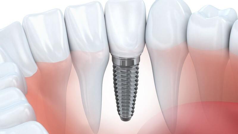Grafik eines Unterkiefers mit einem eingeschraubten Zahnimplantat