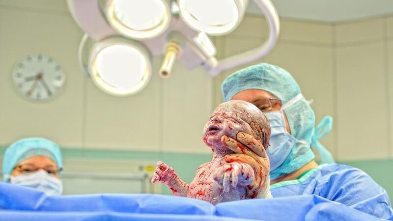 Geburt - Arzt bringt Baby auf die Welt, Neugeborenes kurz vor dem ersten Schrei