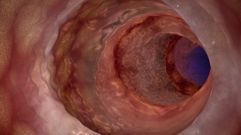 3-D-Grafik der Darmschleimhaut eines Morbus Crohn-Erkrankten