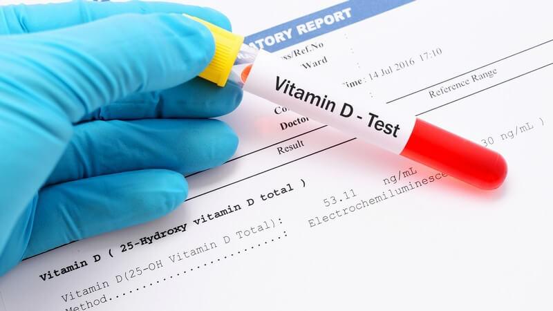 Hand mit blauem Handschuh hält ein Röhrchen mit einer Blutprobe für einen Vitamin D-Test über ein Testergebnis