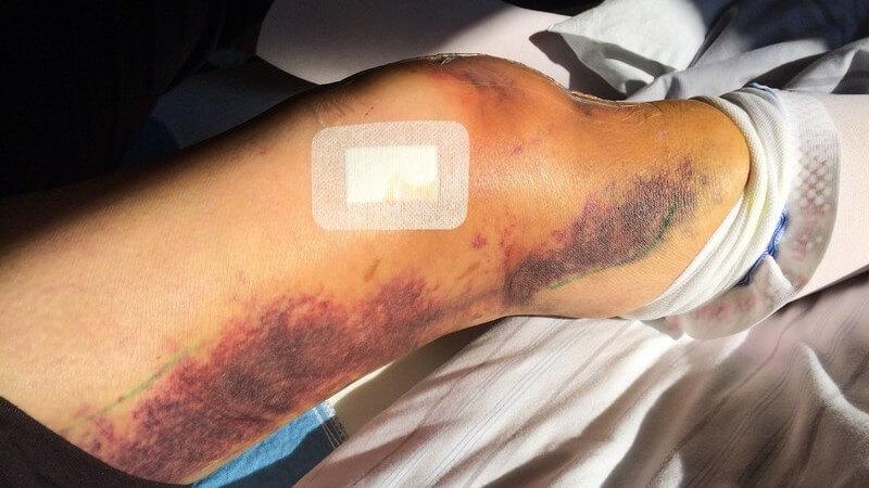 Bein/Knie mit einer Kniegelenksprothese und großem Hämatom entlang der Außenseite