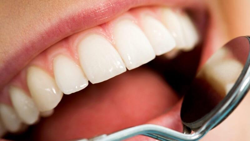 Nahaufnahme offener Mund beim Zahnarzt