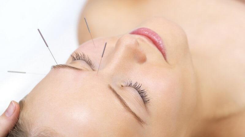 Gesicht einer jungen Frau, Akupunkturnadeln an Stirn, Auge, Wange