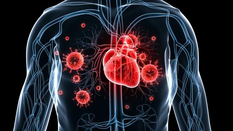 Grafische Darstellung Herzinfektion