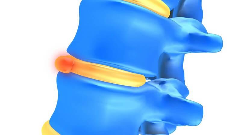 Anatomie - Grafik einer Wirbelsäule mit Bandscheibenvorfall