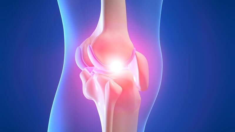 3D Grafik Bein durchsichtig mit rötlichem Kniegelenk, Schmerzen