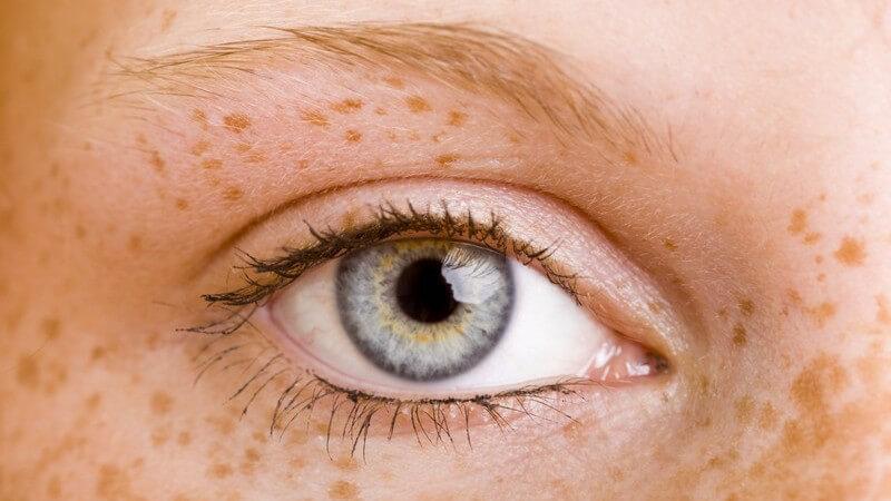 Nahaufnahme rechtes Auge einer Frau mit vielen Sommersprossen, rote Haare