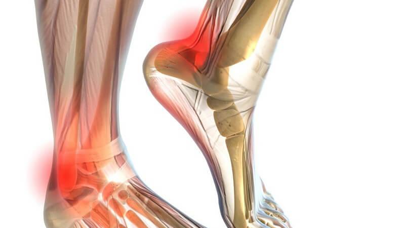 Grafik Füße rot markiert, Schmerzen am Gelenk