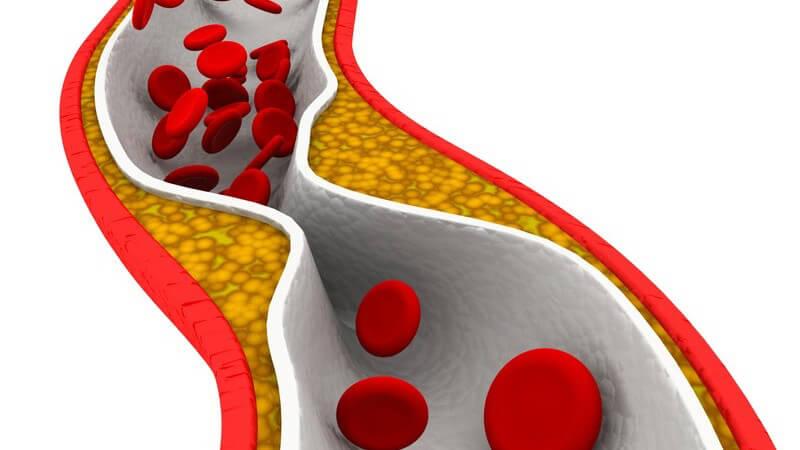 Grafik Arterie mit Blutplättchen und Verengung: Arteriosklerose