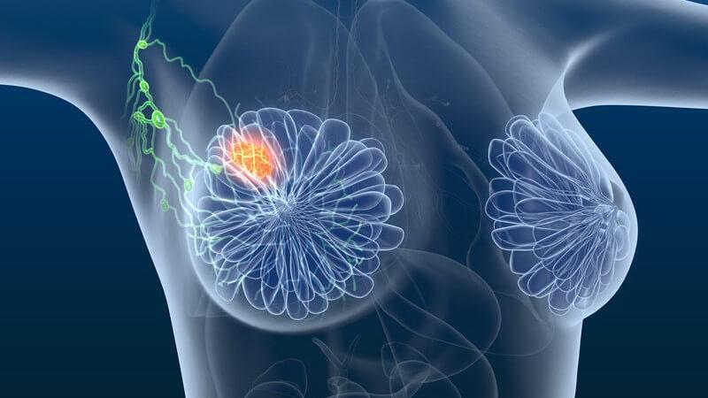 3-D-Grafik einer Frau mit Brustkrebs, Tumor und Lymphknoten farblich hervorgehoben