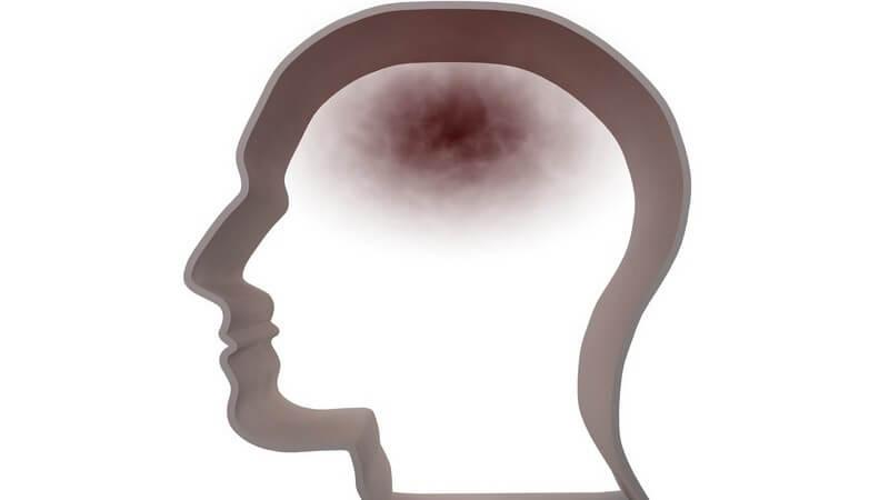 Grafik menschlicher Kopf mit dunkler Verfärbung - Kopfschmerzen
