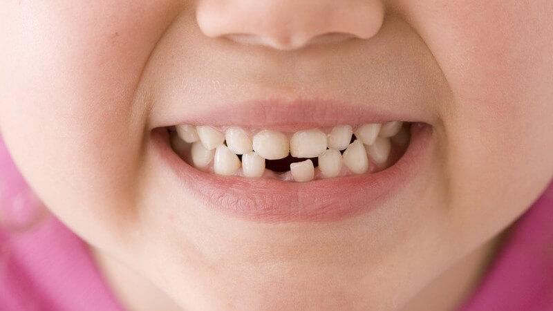Zähne eines Kindes mit fehlendem Schneidezahn im Unterkiefer