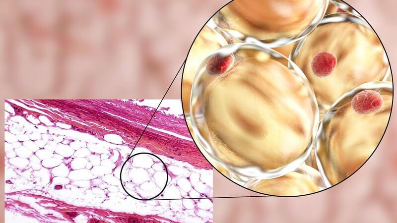 Grafik eines Fettgewebes mit vergrößerter Ansicht der Fettzellen